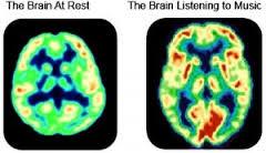 Het brein met en zonder muziek
